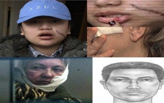Ataques a navajazos contra mujeres en NY; En enero 273 afectadas
