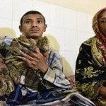 Médico de Bangladesh realiza múltiples y complejas cirugías a «Hombre árbol»