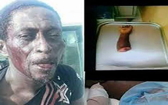 Bestias peligrosas: Otro haitiano cercena brazo a niño de 3 años en La Romana