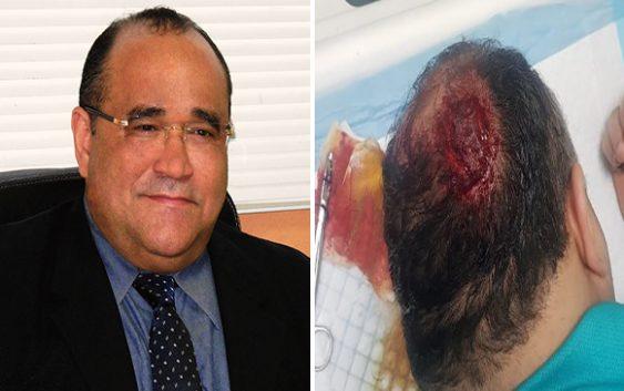 Inseguridad ciudadana: Haitiano asalta con un tubo de metal a geólogo Víctor Santos Suriel