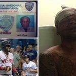 Miembro de la Policía involucrado en el atentado a David Ortiz; Vídeos