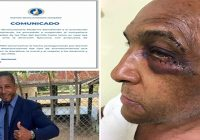 PRM suspende con propuesta de expulsión a Darinel Valdez por agredir exalcalde Alberto Polanco, de Laguna Salada